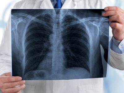 Рентгеновский снимок лёгких. Фото: urgentmednetwork.com