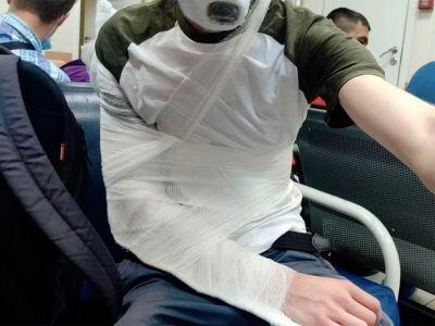 Сломанная рука. Фото: Ombudsmanspb.ru